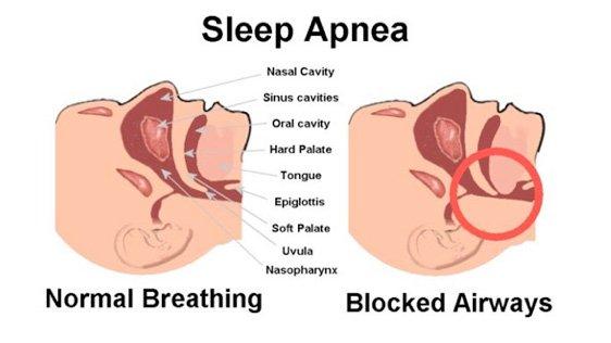 Sleep Apnea Sunshine